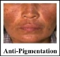Dr. Grandel anti-pigmentation products